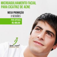 Barb-isac_microagulhamento-acne-m4